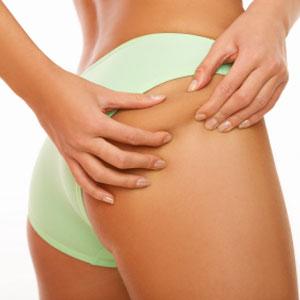 Top Anti-Cellulite Cream Review